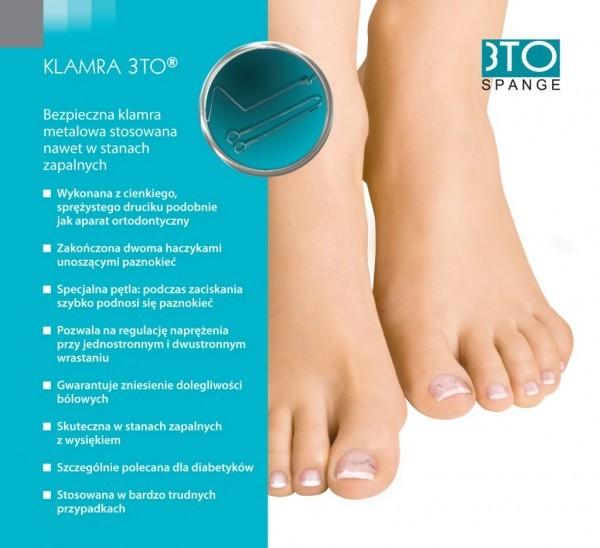 klamra-3TO-600x548