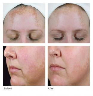 5255a8b7bddcbf7541df060e864e94ab--skin-clinic-pigmentation
