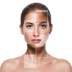Krem-kwasy-tabletki-co-zmniejszy-przebarwienia-na-twarzy